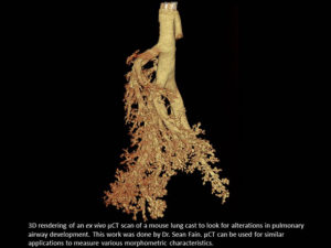 3D rendering of an ex vivo μCT scan of a mouse lung cast to look for alterations in pulmonary airway developoment.