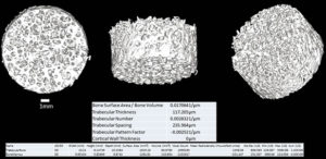 Image of a human sample of trabecular bone excised from a human hip shown in three orientations.