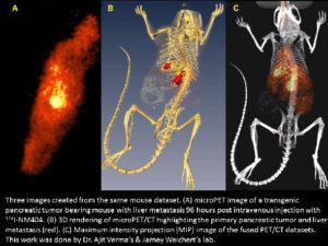 Left, microPET image of a transgenic pancreatic tumor bearing mouse. Center, 3D rendering of microPET/CT highlighting the primary pancreatic tumor and liver metastasis. Right, MIP image of the fused PET/CT datasets.