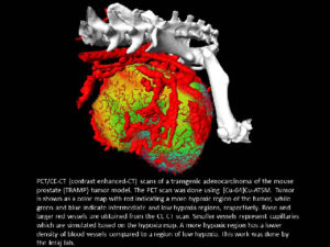 PET/CE-CT (contrast enhanced-CT) scans of a transgenic adenocarcinoma of the mouse prostate.