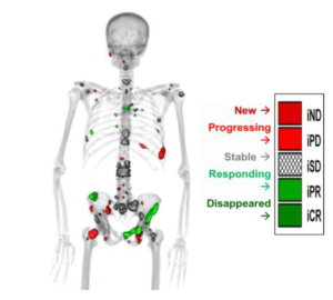 Quantitative Total Bone Imaging (QTBI) uses 18F sodium-fluoride (NaF) PET/CT to automatically identify, segment, and characterize osteoblastic lesions in bone using a variety of imaging features. QTBI allows the ability to co-register multiple scans, using an articulated registration strategy, allowing quantification of individual lesions as they change over time providing both spatial and temporal information. This information allows us to perform PET-directed, CT-guided biopsies in both responding and non-responding lesions allowing each patient to serve as his own control (ongoing clinical trial NCT02677376; PIs: Liu and Jeraj (IR)). This capability also allows us to measure change in total functional burden of disease over time and interlesional response heterogeneity, both of which provide novel clinical trial endpoints to optimize dose, combinations, and sequence of therapies. This tool also serves our discovery initiatives as biopsies of resistant lesions can be readily performed to identify new resistance mechanisms and drug targets.